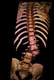 Σπονδυλική στήλη, σπάσιμο πλευρών Αναδημιουργία CT-ανίχνευσης Στοκ εικόνες με δικαίωμα ελεύθερης χρήσης