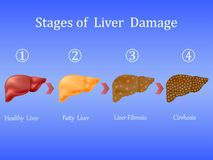 Στάδια της ζημίας συκωτιού, ασθένεια ήπαρ Υγιής, λιπαρή, ίνωση συκωτιού και κίρρωση στο μπλε υπόβαθρο Διανυσματικό Illustratio ελεύθερη απεικόνιση δικαιώματος