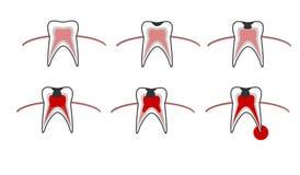 Στάδιο τερηδόνων, σχέδιο αποσύνθεσης δοντιών με την τερηδόνα, stomatological απεικόνιση με τις οδοντικές ασθένειες, σημείο από το διανυσματική απεικόνιση
