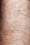 στενό ανθρώπινο δέρμα επάνω Στοκ φωτογραφίες με δικαίωμα ελεύθερης χρήσης