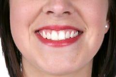 στενό μεγάλο όμορφο χαμόγελο δερμάτων επάνω Στοκ Φωτογραφία