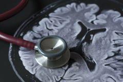 Στηθοσκόπιο και εικόνα του εγκεφάλου MRI στοκ φωτογραφία με δικαίωμα ελεύθερης χρήσης