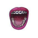 Στηρίγματα δοντιών στο ευρύ ανοικτό στόμα Ύφος κινούμενων σχεδίων Στοκ Εικόνες