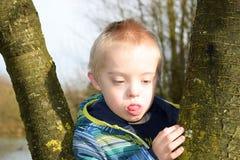 Στοχαστικό αγόρι με το σύνδρομο κάτω ποιος αγκαλιάζει τα δέντρα Στοκ εικόνες με δικαίωμα ελεύθερης χρήσης
