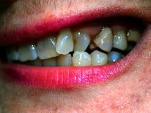 Στριμμένα δόντια στο στόμα orthodontics malocclusion στοκ φωτογραφία
