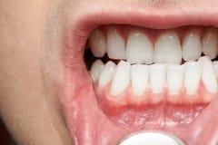 Στόμα ατόμων με τα υγιή δόντια Στοκ εικόνα με δικαίωμα ελεύθερης χρήσης