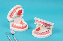 Συγκρίνετε το πρότυπο δοντιών και το πρότυπο δοντιών με το οδοντικό στήριγμα καλωδίων μετάλλων στοκ φωτογραφία με δικαίωμα ελεύθερης χρήσης