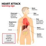 Συμπτώματα επίθεσης καρδιών διανυσματική απεικόνιση