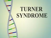 ΣΥΝΔΡΟΜΟ του TURNER - γενετική έννοια ελεύθερη απεικόνιση δικαιώματος