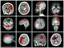Συλλογή της ασθένειας εγκεφάλου στοκ εικόνες
