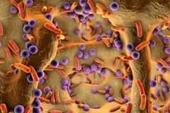 Σφαιρικά και ράβδος-διαμορφωμένα βακτηρίδια μέσα στον ιστό κόκκαλων Στοκ εικόνα με δικαίωμα ελεύθερης χρήσης