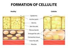 Σχηματισμός του cellulite διανυσματική απεικόνιση