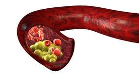 Σχηματισμός χοληστερόλης, λίπος, αρτηρία, φλέβα, καρδιά Κόκκινα κύτταρα αίματος, ροή αίματος Στένεμα μιας φλέβας για τον παχύ σχη διανυσματική απεικόνιση