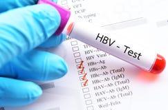 Σωλήνας δειγμάτων αίματος για τη δοκιμή σχεδιαγράμματος HBV στοκ φωτογραφία με δικαίωμα ελεύθερης χρήσης