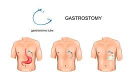 Σωλήνας Gastrostomy surgery διανυσματική απεικόνιση