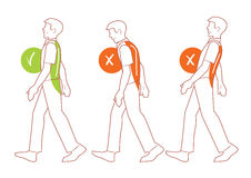 Σωστή στάση σπονδυλικών στηλών, κακή θέση περπατήματος απεικόνιση αποθεμάτων