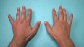 Σύγκριση δύο αρσενικών χεριών που τσιμπιούνται από τη μέλισσα ή τη σφήκα Το χέρι που πρήζεται, ανάφλεξη, ερυθρότητα είναι σημάδια απόθεμα βίντεο