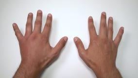 Σύγκριση δύο αρσενικών χεριών που τσιμπιούνται από τη μέλισσα ή τη σφήκα Το χέρι που πρήζεται, ανάφλεξη, ερυθρότητα είναι σημάδια φιλμ μικρού μήκους
