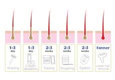 Σύγκριση των δημοφιλών μεθόδων αφαίρεσης τρίχας: λέιζερ, epilator, κήρωμα, ξύρισμα, που, απεικόνιση αποθεμάτων