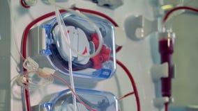 Σύγχρονος ιατρικός εξοπλισμός για τη διαδικασία αιμοδιάλυσης Σύγχρονη έννοια ιατρικού εξοπλισμού απόθεμα βίντεο