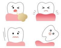 Σύνολο συμπτωμάτων ασθενειών γόμμας: ανάφλεξη, κακή αναπνοή, χαλαρά δόντια, και υποχωρώντας γόμμες προφορική και οδοντική έννοια  ελεύθερη απεικόνιση δικαιώματος