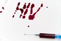 Σύριγγα της κόκκινης εξέτασης αίματος για την ιδέα έννοιας του AIDS ερευνητικού HIV Στοκ Εικόνα