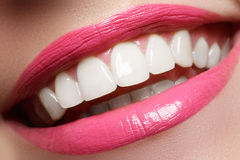 Τέλειο χαμόγελο μετά από τη λεύκανση Οδοντική προσοχή και λεύκανση των δοντιών Χαμόγελο γυναικών με τα μεγάλα δόντια Κινηματογράφ Στοκ Εικόνες
