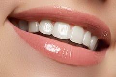 τέλειο χαμόγελο Όμορφα φυσικά πλήρη χείλια και άσπρα δόντια λεύκανση δοντιών Στοκ Εικόνα