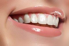τέλειο χαμόγελο Όμορφα φυσικά πλήρη χείλια και άσπρα δόντια λεύκανση δοντιών Στοκ φωτογραφία με δικαίωμα ελεύθερης χρήσης