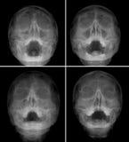 Ταινία ακτίνας X του προσώπου - μετωπικού, προβολή μύτη-πηγουνιών Πολλές από τις εικόνες ιγμορίτιδα κανόνας Στοκ εικόνες με δικαίωμα ελεύθερης χρήσης
