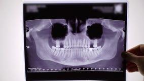 Ταινία ακτίνας X των δοντιών και του σαγονιού φιλμ μικρού μήκους