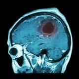 Ταινία MRI του εγκεφάλου με το όγκο στον εγκέφαλο (βελονοειδές αεροπλάνο, πλάγια όψη, πλευρική άποψη) (ιατρική, την υγειονομική π Στοκ Εικόνες