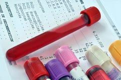 Τα αποτελέσματα αναλύουν στα γαλλικά με έναν σωλήνα του αίματος απεικόνιση αποθεμάτων