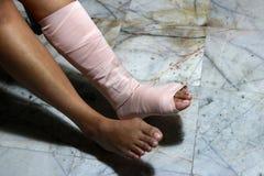 Τα αριστερά πόδια και τα πόδια είναι στο ασβεστοκονίαμα χυτό επειδή θρυμματίζονται στοκ εικόνες