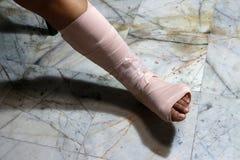 Τα αριστερά πόδια και τα πόδια είναι στο ασβεστοκονίαμα χυτό επειδή θρυμματίζονται στοκ φωτογραφίες