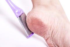 Τα θηλυκά πόδια με το αφυδατωμένο ξηρό δέρμα στην κινηματογράφηση σε πρώτο πλάνο τακουνιών Στοκ Φωτογραφία