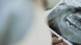 Τα θηλυκά χέρια κρατούν την οδοντική των ακτίνων X εικόνα για την ανάλυση 4K απόθεμα βίντεο