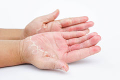 Τα ξηρά χέρια, φλούδα, δερματίτιδα επαφών, μυκητιακές μολύνσεις, δέρμα INF Στοκ φωτογραφία με δικαίωμα ελεύθερης χρήσης