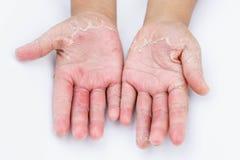 Τα ξηρά χέρια, φλούδα, δερματίτιδα επαφών, μυκητιακές μολύνσεις, δέρμα INF Στοκ εικόνα με δικαίωμα ελεύθερης χρήσης