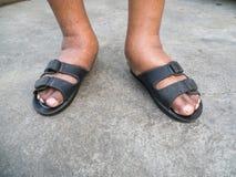 Τα πόδια του ατόμου με το διαβήτη, θαμπός και πρησμένος Λόγω της τοξικότητας του διαβήτη Διόγκωση ποδιών που προκαλείται από το π Στοκ Εικόνες