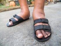 Τα πόδια του ατόμου με το διαβήτη, θαμπός και πρησμένος Λόγω της τοξικότητας του διαβήτη Διόγκωση ποδιών που προκαλείται από το π Στοκ εικόνες με δικαίωμα ελεύθερης χρήσης
