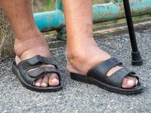 Τα πόδια του ατόμου με το διαβήτη, θαμπός και πρησμένος Λόγω της τοξικότητας του διαβήτη Διόγκωση ποδιών που προκαλείται από το π Στοκ Φωτογραφία