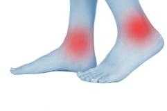 Τα πόδια που βλάπτονται, παρουσιασμένος κόκκινο, κρατούν στοκ φωτογραφία με δικαίωμα ελεύθερης χρήσης