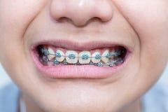 Τα δόντια ενισχύουν οδοντικό για το υπόβαθρο Στοκ Φωτογραφίες