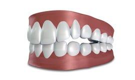Τα δόντια θέτουν κλειστός απομονωμένος Στοκ Εικόνες