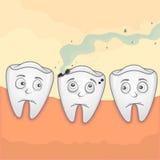 Τερηδόνα δοντιών Στοκ Εικόνες