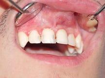 Τερηδόνα των ανώτερων incisors Στοκ Εικόνες