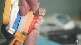 Τεχνικός εργαστηρίων που αφαιρεί τις ατέλειες από το οδοντικό μόσχευμα απόθεμα βίντεο
