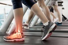Τονισμένος αστράγαλος της γυναίκας treadmill Στοκ εικόνες με δικαίωμα ελεύθερης χρήσης