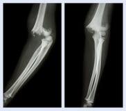 Τον αγκώνα σπασίματος (που αφήνεται την εικόνα: δευτερεύουσα θέση, σωστή εικόνα: μπροστινή θέση) Στοκ φωτογραφίες με δικαίωμα ελεύθερης χρήσης